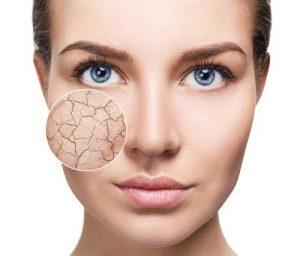 Dry Skin Essential Oils