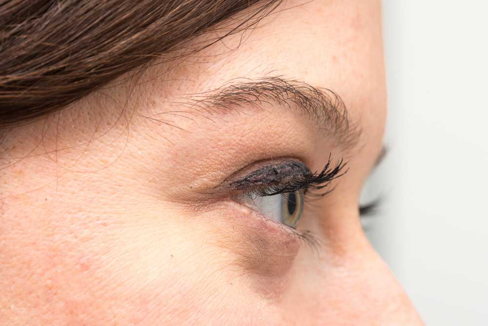 When concealer doesn't help – Natural at-home treatments for tired eyes