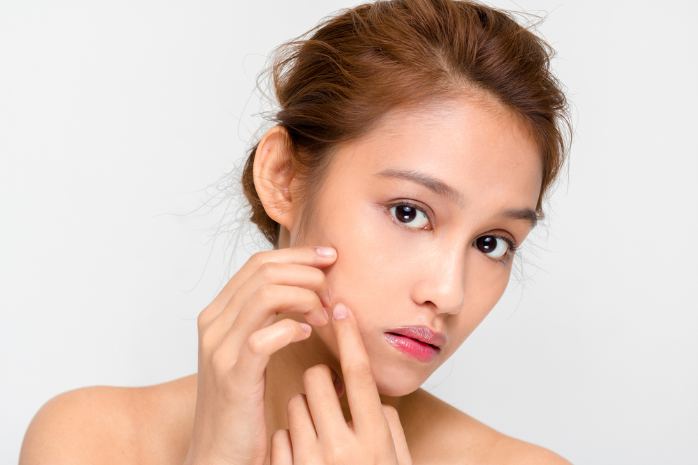 How to fight acne the natural way